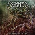 Skinned - Isolating The Gene